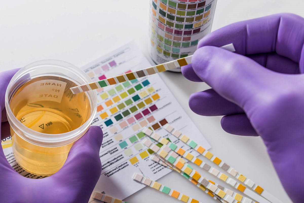 How To Pass Urine Drug Test In a Week